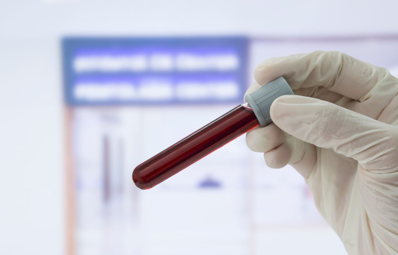 Blood Test Diabetes Prediabetes